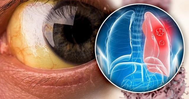 5 dấu hiệu của bệnh ung thư phổi nhiều người thường bỏ qua - Ảnh 4.