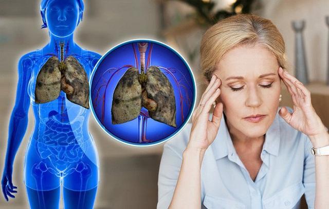 5 dấu hiệu của bệnh ung thư phổi nhiều người thường bỏ qua - Ảnh 5.