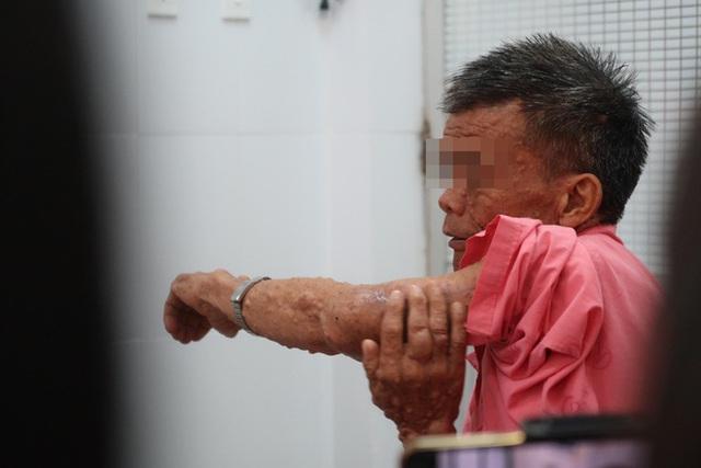 Thầy giáo dạy Toán mang đôi chân biến dạng suốt 20 năm lên bục giảng - Ảnh 2.