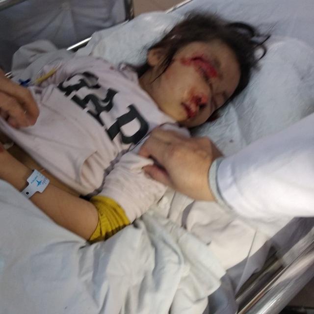 Bàng hoàng mẹ tử vong tại chỗ, con gái bị thương nặng sau khi va chạm với xe tải - Ảnh 3.