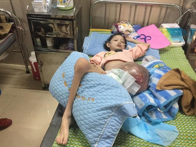 Cô bé Lưu Thị Hồng Phương bị ung thư xương bệnh tiến triển nặng - Ảnh 1.