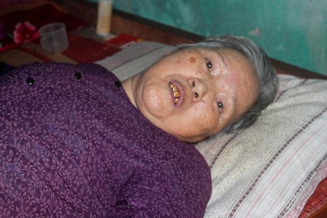 Ám ảnh câu nói của người đàn bà bệnh tật nuôi chị gái liệt giường và mẹ già gần trăm tuổi - Ảnh 5.