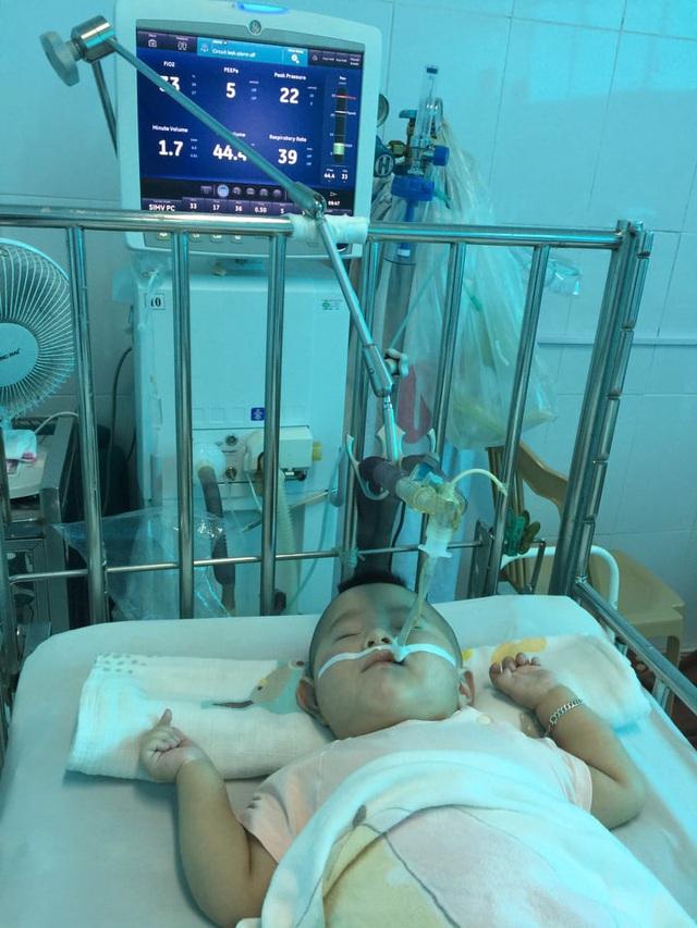 Sự sống mong manh của bé 14 tháng bị nhược cơ phải thở máy gần năm trời - Ảnh 2.