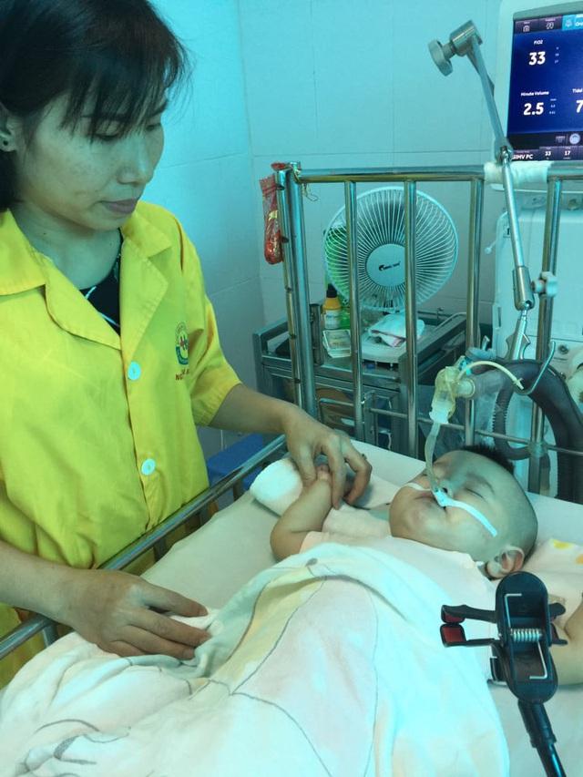 Sự sống mong manh của bé 14 tháng bị nhược cơ phải thở máy gần năm trời - Ảnh 4.