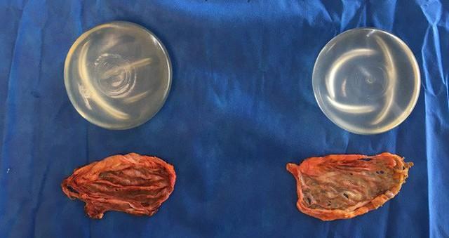 Lớp mô sẹo bao lấy silicon trong cấy ghép ngực được loại bỏ