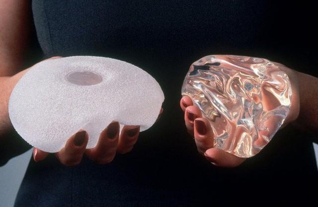 Cấy ghép silicon nâng ngực có thể làm tăng nguy cơ mắc một loại ung thư máu hiếm gặp