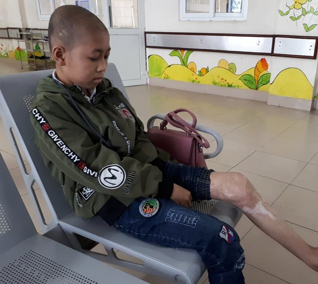 Tai nạn bỏng khiến Nam đi lại khó khăn, hai chân phát triển không đều với đầy di chứng sẹo. ảnh PT