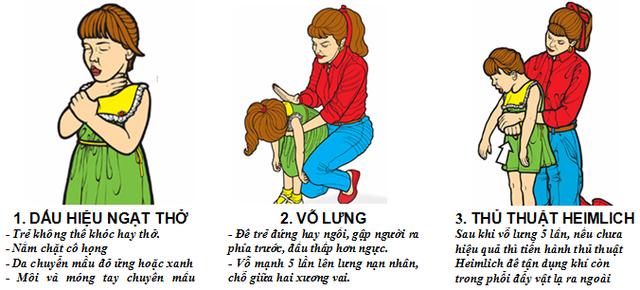 Khi con bị hóc dị vật, tuyệt đối không được móc họng hoặc cố tống dị vật xuống. Nên dùng thủ thuật Heimlich để lấy dị vật ra cho trẻ. Ảnh: TL