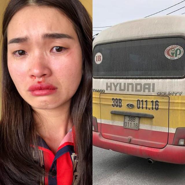 Hình ảnh nữ hành khách sau khi bị tài xế và phụ xe đánh đập dã man