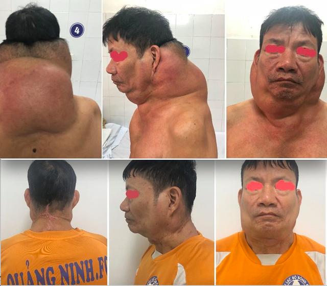 Hình ảnh bệnh nhân trước và sau 3 lần phẫu thuật để thoát khỏi hình ảnh người gấu