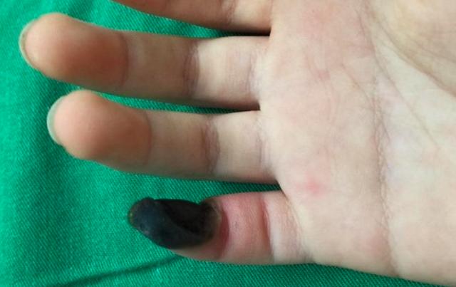 Theo gia đình bệnh nhi, thấy con bị mụn cóc ở tay, gia đình đã dùng thuốc tự mua trên mạng, hậu quả là con bị hoại tử 1/3 ngón tay.