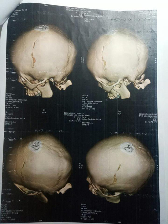 Hình ảnh phim chụp chiếu thương tích của cháu L. Ảnh: NVCC