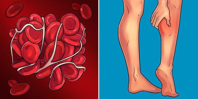 Những dấu hiệu điển hình giúp phát hiện sớm 10 căn bệnh nguy hiểm ai cũng nên biết - Ảnh 10.