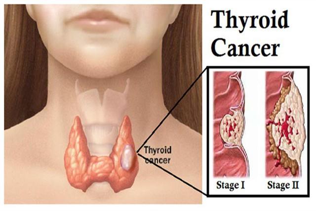 Ung thư tuyến giáp là căn bệnh ung thư phổ biến trong 10 bệnh ung thư hay gặp ở nước ta