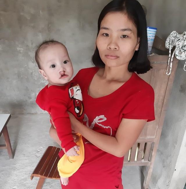 Đã mất đi hai con vì bệnh, chị Oanh mong rằng bé Vũ sẽ có được cuộc sống bình thường. Ảnh Huy Đạt