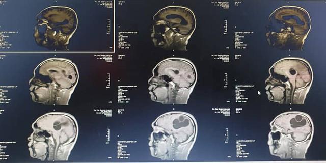 Hình ảnh CT, MRI sọ não, kén sán não trước khi phẫu thuật. Ảnh: TL