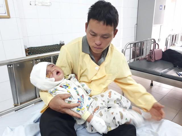 Những cơn đau thường xuyên hành hạ bé