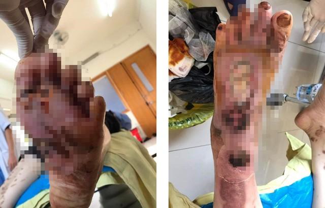 Bàn chân anh H.M.T (28 tuổi, ở Phú Thọ) khi mới nhập viện