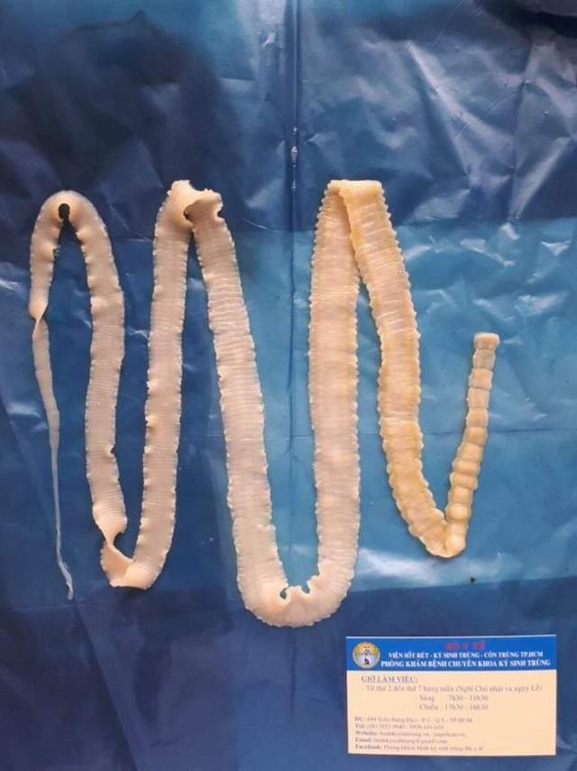 Chiều dài của sán trưởng thành lên tới 2 - 12m, chúng ký sinh trong ruột non nhiều năm.