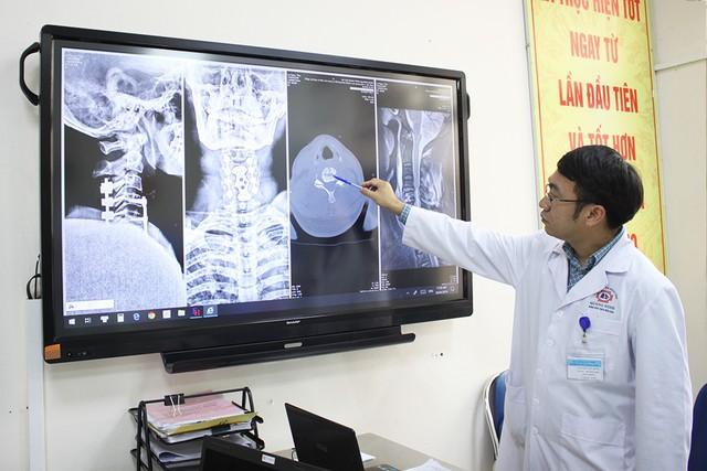 Hình ảnh đốt sống cổ của của bệnh nhân sau khi được chụp chiếu