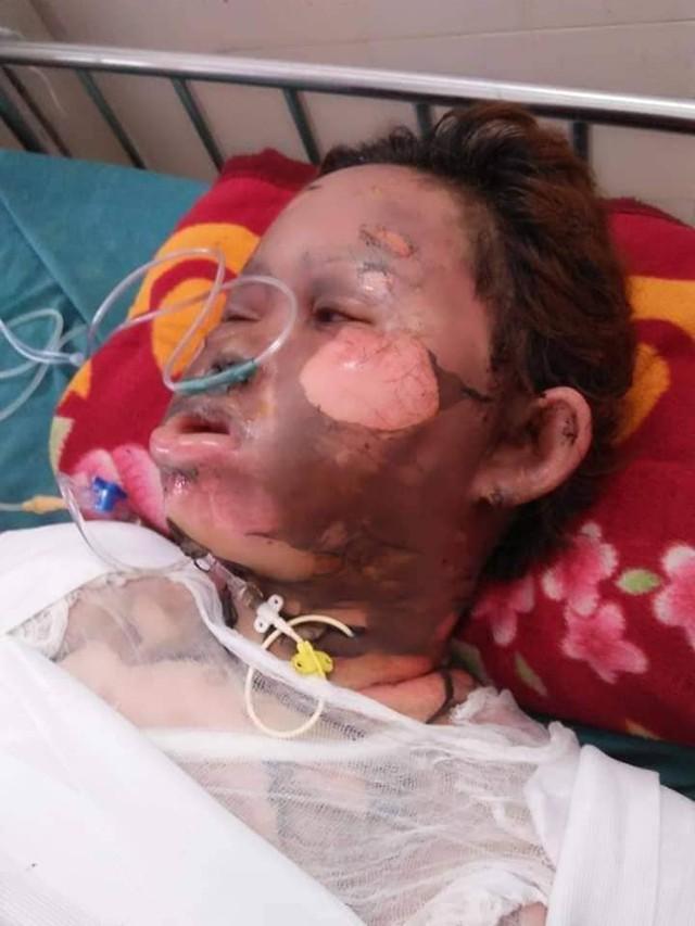 Lê Thị Kim Ngân sau khi gặp nạn.