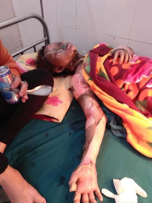 Lê Thị Kim Ngân đang thập tử nhất sinh ở bệnh viện Chợ Rẫy. Ảnh gia đình cung cấp.