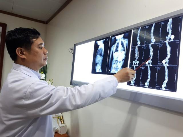BS Đinh Ngọc Sơn cho biết nếu bé Tuệ Linh không được can thiệp sớm thì sẽ ảnh hưởng nặng nề về sức khỏe từ tình trạng cong vẹo cột sống bẩm sinh. ảnh PT