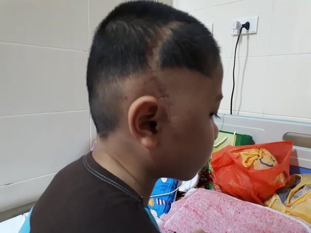Trên đầu của Thái vết sẹo dài sau đợt phẫu thuật