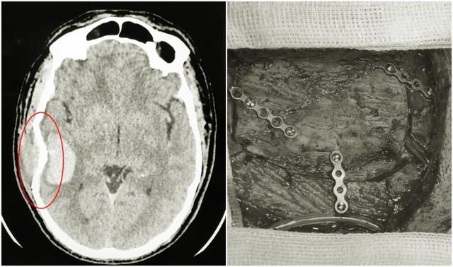 Hình ảnh chấn thương tại vũng não của bệnh nhân