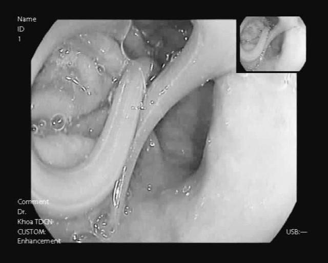 Con giun đũa 15cm được gắp ra khỏi dạ dày nữ bệnh nhân Hà Nội