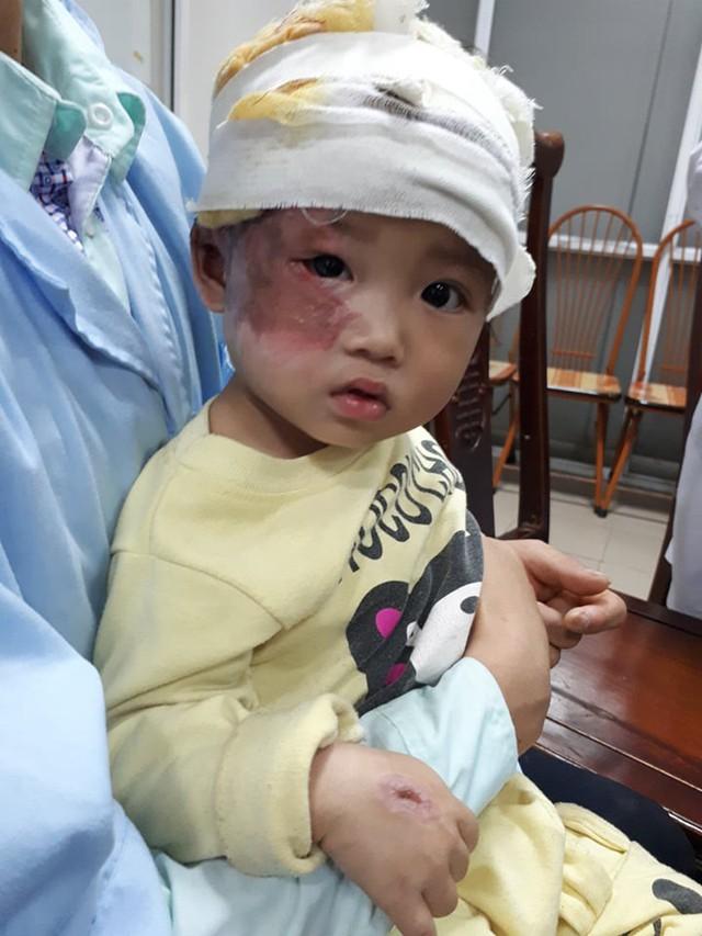Khuôn mặt xinh xắn của bé Kê sau tai nạn bỏng. ảnh PT