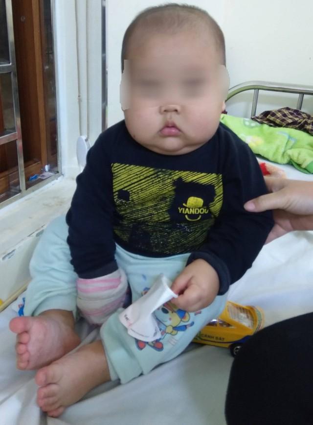 2 tháng gần đây, bé tăng 3 cân, mặt béo tròn. Ảnh : BVCC