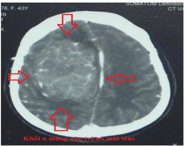 Khối u trong não bệnh nhân qua hình ảnh CTScan. Ảnh BVCC