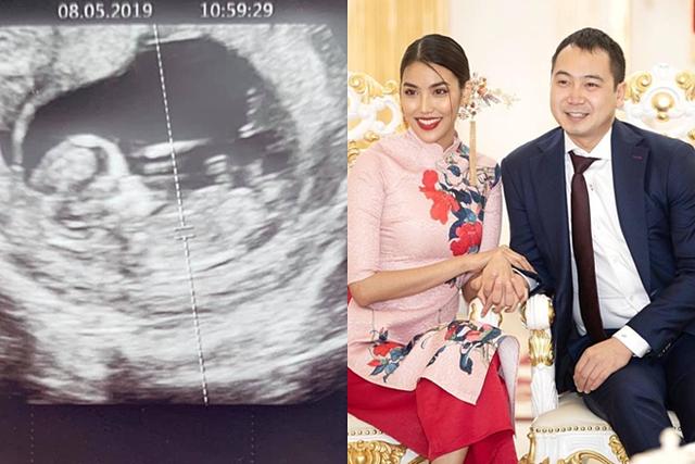 Hôm 11/5, sau bảy tháng kết hôn, Lan Khuê thông báo cô đang mang thai con đầu lòng. Ông xã Tuấn John còn khoe ảnh siêu âm lên trang cá nhân. Hiện sức khỏe Lan Khuê ổn định, không ốm nghén nhiều và hai vợ chồng hào hứng chuẩn bị cho sự ra đời của thành viên mới.