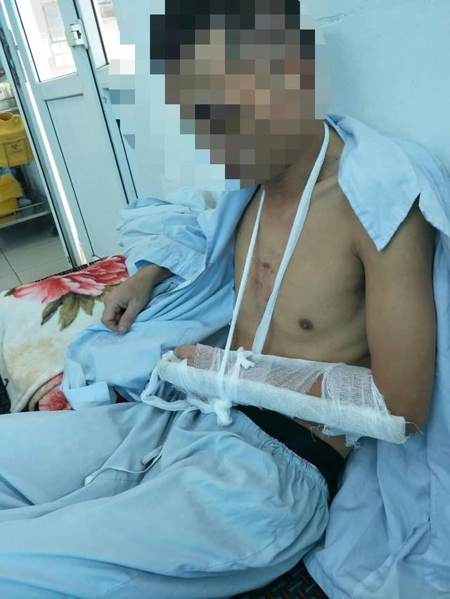 Anh C bị đánh gãy tay nhập viện. Ảnh: Gia đình nạn nhân cung cấp.