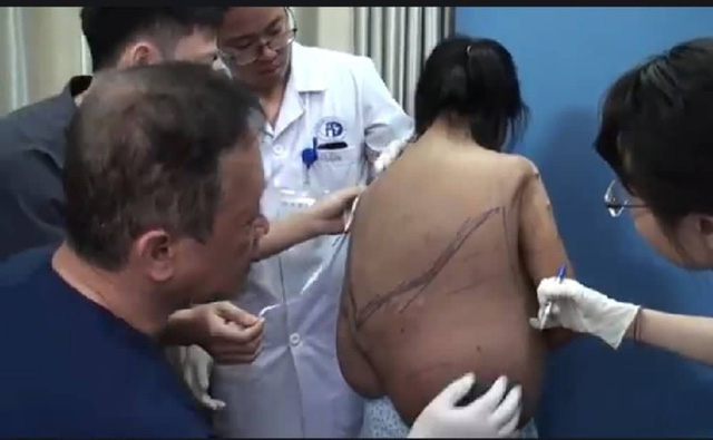 Bác sĩ xác định khối u.