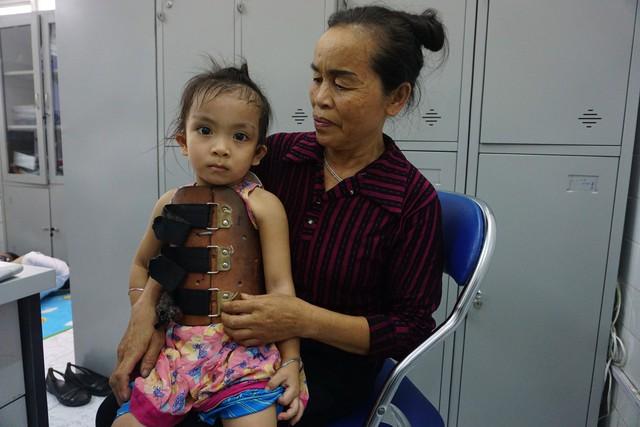 Hai bà cháu bé Tuệ Linh trong ngày đi tái khám. ảnh Phương Thuận