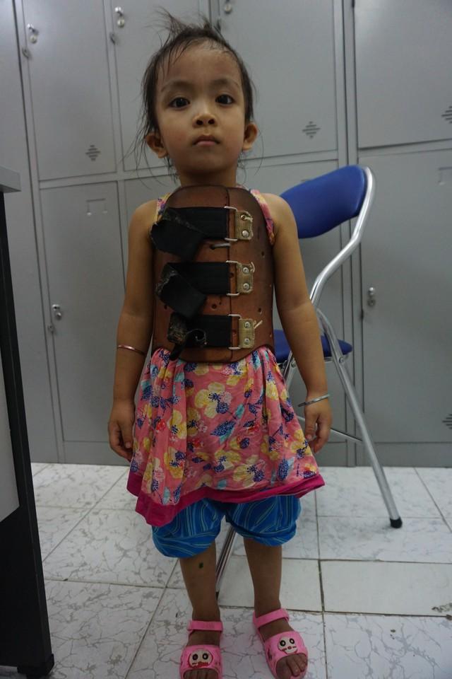 Bé Tuệ Linh vẫn phải mặc áo nẹp nhưng đã đứng thẳng sau phẫu thuật. ảnh PT