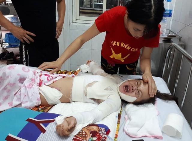 Tai nạn khiến bé Ngọc bỏng nặng khắp cơ thể. ảnh PT