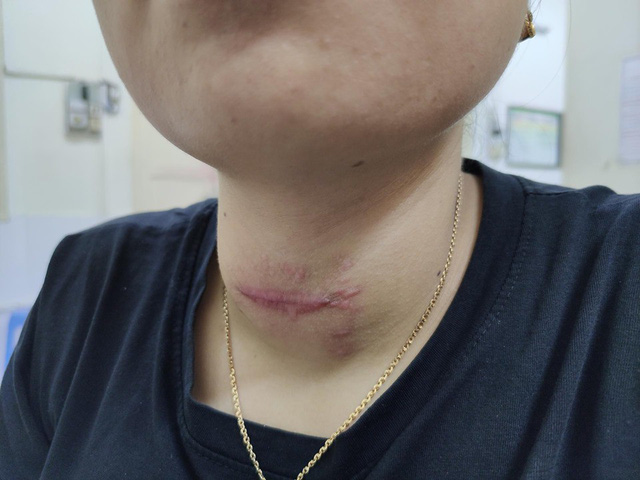 Cổ chị L sưng to hơn sau quá trình chữa bệnh bởi thầy lang ở Hải Phòng. Ảnh: BVCC