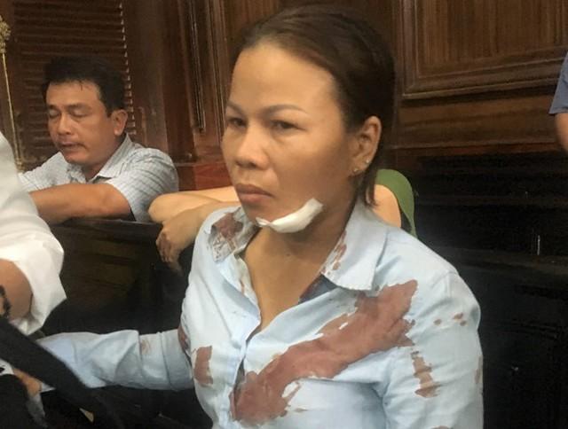 Chị Liền bị đánh phải nhập viện khâu vết thương. Ảnh:. H.T.