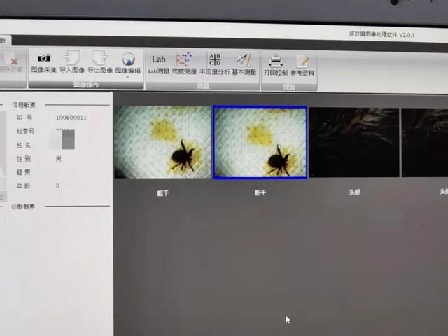 Hình ảnh con bọ lấy ra khỏi đầu cậu bé