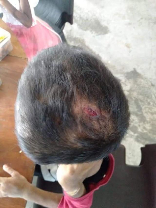 Đầu bé trai vẫn còn một vết thương chưa lành.