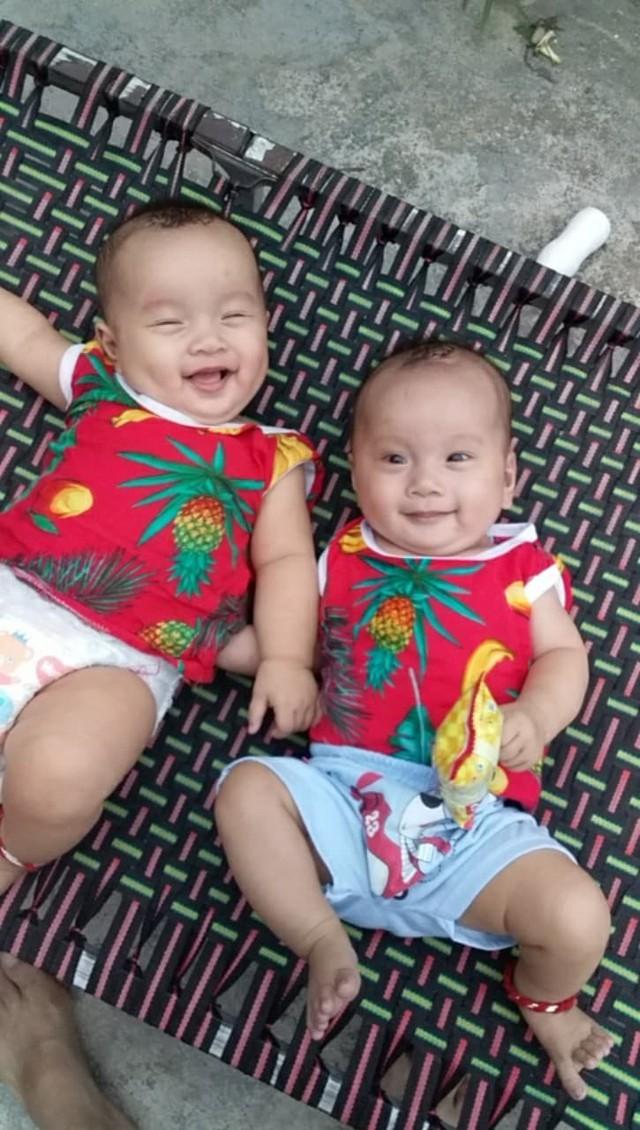 Rớt nước mắt hoàn cảnh bé sinh đôi mắc bệnh tim phức tạp cần phẫu thuật gấp - Ảnh 5.