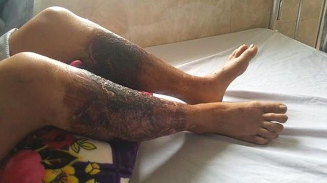 Sau khi lội qua mương nước, 2 chân của bà Lan bị bồng rộp và nhập viện điều trị. Ảnh: CTV