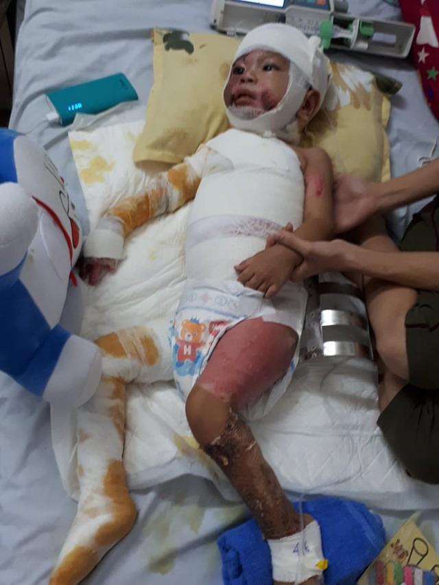 Toàn thân bé Bảo bị bỏng nặng. ảnh PT
