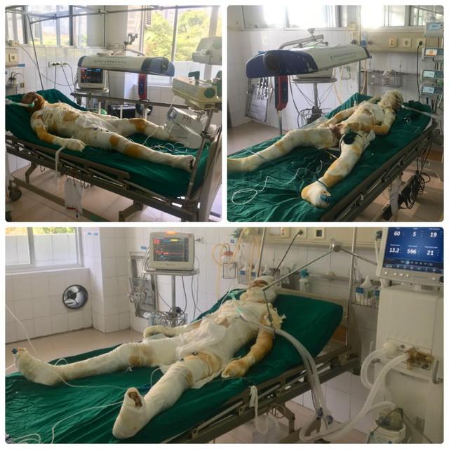 Các nạn nhân trong nghi án người tình phóng hỏa giết người ở Sơn La đang điều trị tại Viện Bỏng Quốc gia. Ảnh: Nguyễn Lan