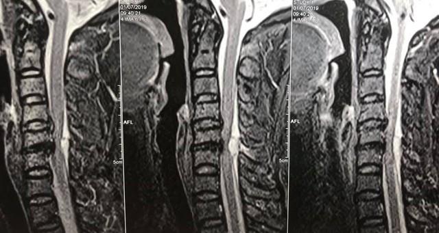 Hình ảnh trên phim chụp cộng hưởng từ cho thấy khối máu tụ rất lớn, chèn ép ống tuỷ cổ, nguyên nhân gây liệt cho bệnh nhân. Ảnh: BSCC