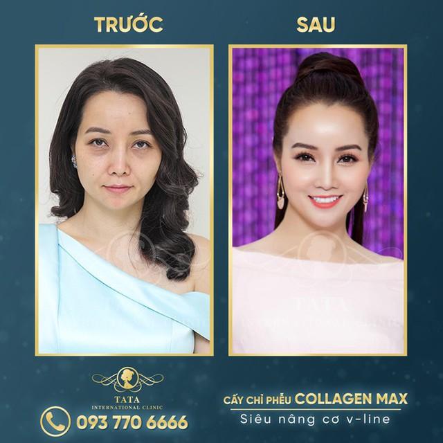 Làn da xuống cấp và sau căng chỉ Collagen Max - nữ diễn viên đã lấy lại vẻ đẹp thanh xuân vốn có