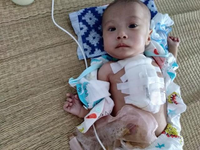 Sự sống mong manh của bé trai 4 tháng tuổi gồng mình chống chọi đủ thứ bệnh - Ảnh 1.